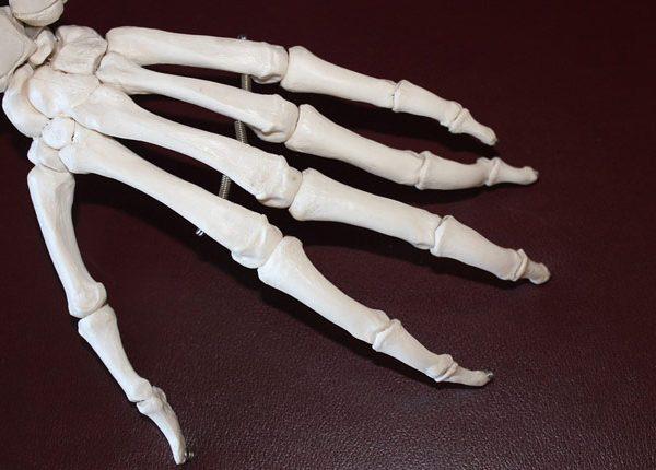 Whole Body Cryotherapy for Rheumatoid Arthritis